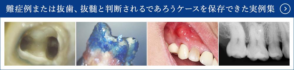 歯内療法・根管治療の治療例