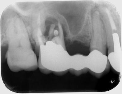 右上犬歯と第一小臼歯の根管治療