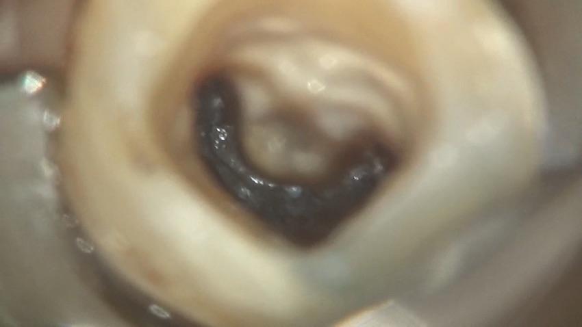 歯茎の腫れ? 痛み? 根管治療とはなに?