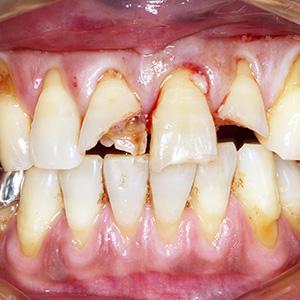 外傷歯治療